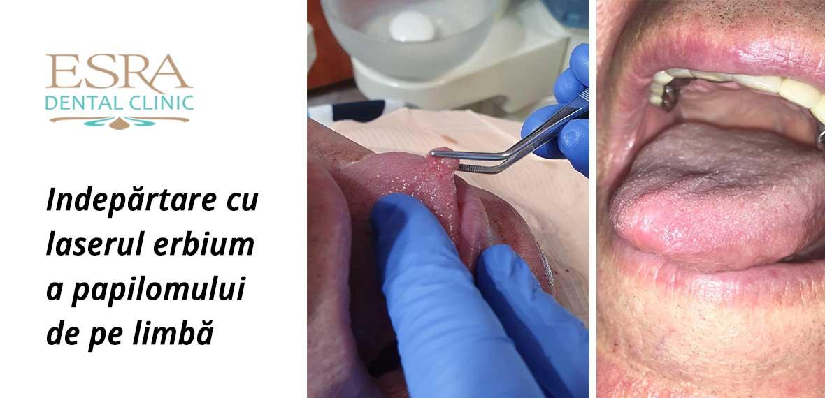 condiloame vaginale ce este